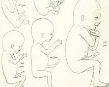 1912 Diagram Human Fetus. Baby Anatomy Print. Larousse. French Vintage 105 YEARS OLD