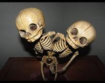 Siamese twins fetus skeleton . Free shipping
