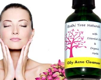 Oily skin Cleanser - 100% Vegan - Problem prone cleanser -  Acne Cleanser - Facial Cleanser/ No - water cleanser (2oz)