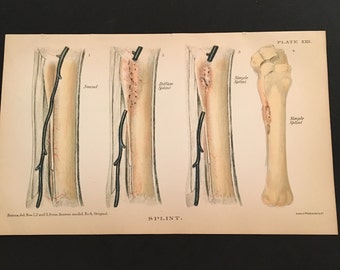 1890 Color Print, Common Horse Splints, Original Antique Lithograph by Sackett & Wilhelms
