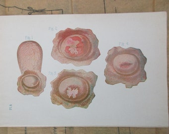 original page - 1905 color MEDICAL CHART from antique medical book -vagina, female, cervix,  womb