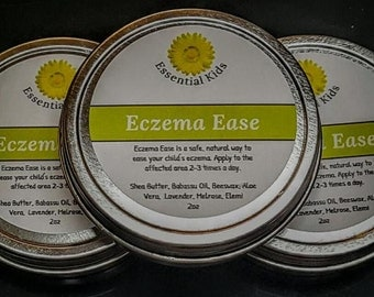 Eczema Ease - Soothe Dry Skin - Ease Inflammation - 2 oz