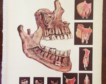 1916 color lithograph MEDICAL CHART from antique medical book - Diseases of the Teeth