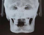 X ray of the skull of a human victim of the Black Death in Medieval London  (Postero-Anterior) Spooky Hallowe'en No. 42