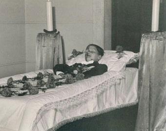 post mortem photograph burned teenage boy