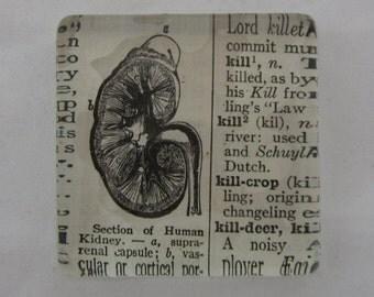 Kidney Paperweight
