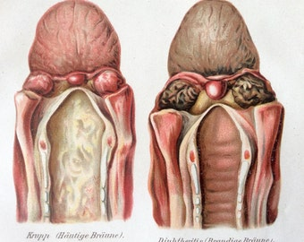 Vintage 1907 German THROAT DISEASE  Medical Chromolithograph Anatomy Diagram Bookplate Dissection
