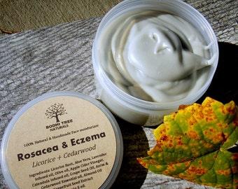 4oz Eczema - Rosacea - Dermatitis Balm - Rosacea cream - Eczema Cream - Eczema balm - Skin Irritation balm - Redness relief
