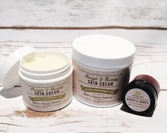 All Natural Vegan Diaper Rash Cream / Rough & Bumpy Skin Cream