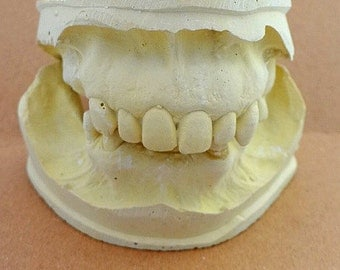 vintage dental mold plaster form
