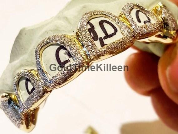 Permanent Gold Teeth Designs