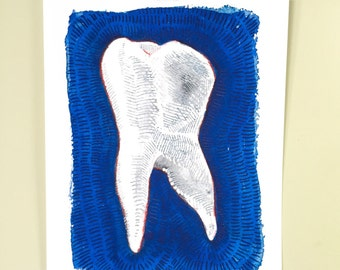 Blue Tooth. A signed print of an original dental watercolor.