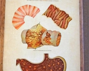 Antique Victorian original anatomical chart poster display stomach organs intestines disease medical Yaggy's Study body 1885 gruesome weird