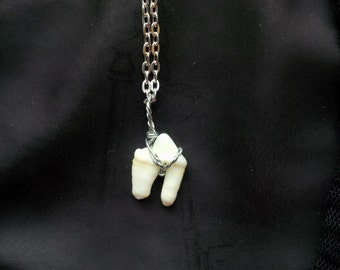 Real Wolf Tooth Premolar Necklace
