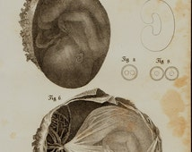 1840 Antique FETUS print, fine anatomy engraving of the fetus in the placenta, obstetrics for midwives