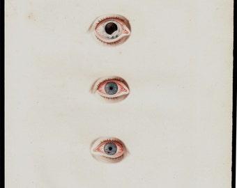 1818 Antique EYES print, fine anatomy lithograph, eyeball, ocular globe diseases, original antique 198 years old