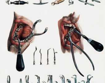 ML21 Vintage 1800's Medical Dentist Tools & Equipment Poster Re-Print Wall Decor A2/A3/A4
