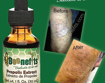 Beenefits Bee Propolis Extract 1 fl. ounce