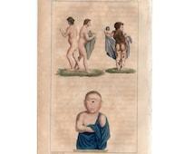 1829 PHYSICAL DEFORMITIES & medical abnormalities print - very rare original antique anatomy engraving - cyclops, siamese twins, piebald