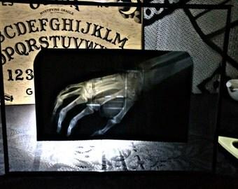 Framed Right Hand X-ray