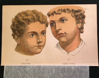 Antique Medical Print, Measles and Scarlet Fever, 1890 Color Lithograph