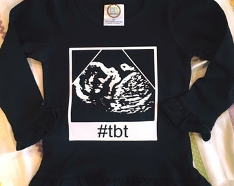 Tbt ultrasound shirt with your childs actual sonogram!