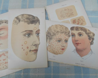 Color Lithograph Medical Book Plate Illustrations Skin Diseases Small Pox, Measles, Scarlet Fever Ephemera Frameable Doctor's Office c. 1892
