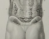 1857 Antique bizarre print of MALE ANATOMY. Surgery. Nude man. 159 years old lithograph.