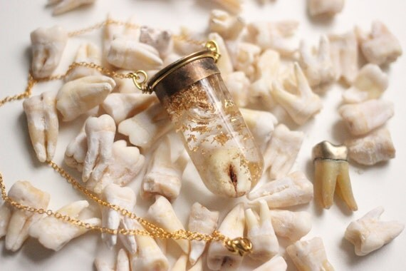 Custom Tooth & Gold Flake Glass Snowglobe Necklace