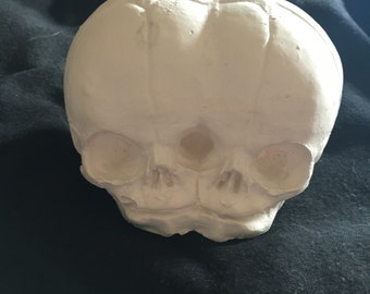 Siamese conjoined twins cast curiosity oddity fetal skull REPLICA decor