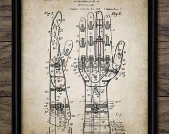 Artificial Hand Patent Print - Prosthetic Hand Wall Art - Robotic Hand - Printable Art - Single Print #422 - INSTANT DOWNLOAD
