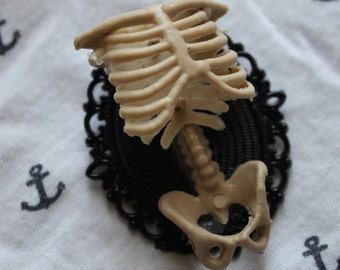 Spindle rib cage