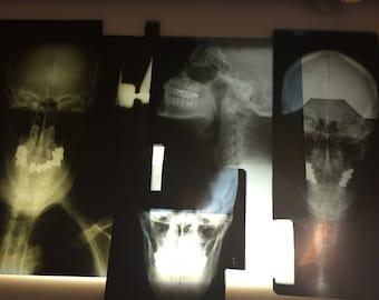 Vintage Human X-Rays