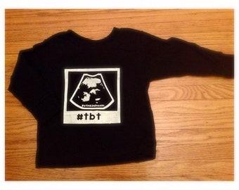 Customized #TBT Ultrasound Shirt