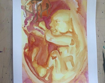 Watercolor Ultrasound, Ultrasound Art, Ultrasound Painting, Custom Art