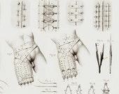 1858 Antique MEDICAL print. vintage  anatomy print, anatomical drawn, leg amputation, stitches, surgery tools, penis, surgery tools