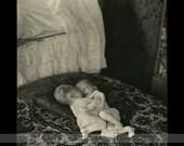 Very Rare Original Conjoined Twins Photo