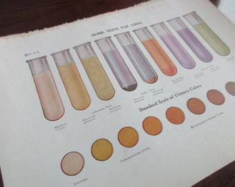original page - 1916 color MEDICAL CHART from antique medical book - urine, test tube