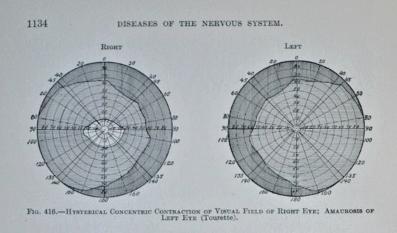 Antique  illustration. Diseases of the nervous system. Old book plate, 1911. 105 years lithograph. 9'4 x 6'2 inches.