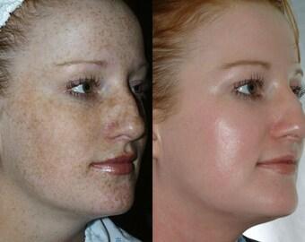 Vegan LACTIC ACID PEEL 50% acne scars wrinkles oily/dry skin anti aging exfoliating winter firming tone hyperpigmentation melasma dark spots