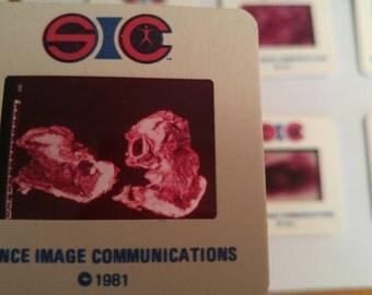 48 Vintage Scientific Medical Slides