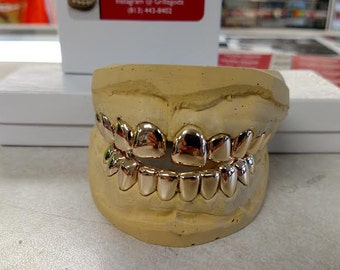 Gold Teeth: 14 K Solid Gold 10/10