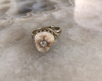 Human Tooth and Faux Diamon Cavity Ring