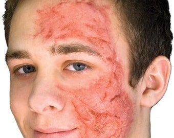 Pro Burn Scar Make-Up Special Effects/ Scar Tissue Make-Up Special Effects/ Scar Tissue Make-Up/ Halloween Make-Up