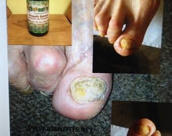 Arthritis and quality beenefits propolis