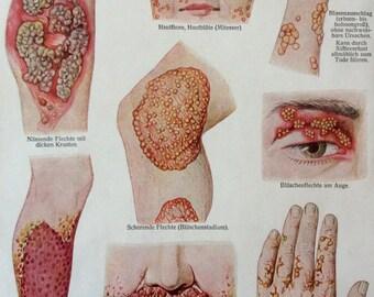 Vintage 1920s German Medical Anatomy Skin Disease Diagram Bookplate
