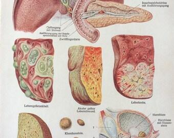 Vintage 1920s German Medical Anatomy LIVER Disease Organ Diagram Bookplate