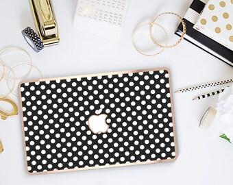 Platinum Edition Black Polka with w/Rose Gold Edge Hybrid Hard Case for Apple Mac Air & Mac Retina , New Macbook 2016