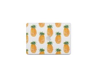 Pineapple Macbook Case