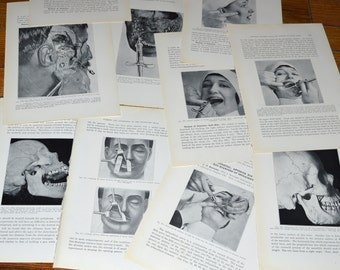 Antique Medical / Dental - Huge Lot of Unusual 90 Year old Book Plates - Facial Injections / Skulls / Cadaver Heads - Frame Worthy